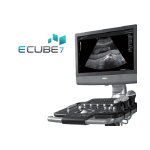 ультразвуковой сканер